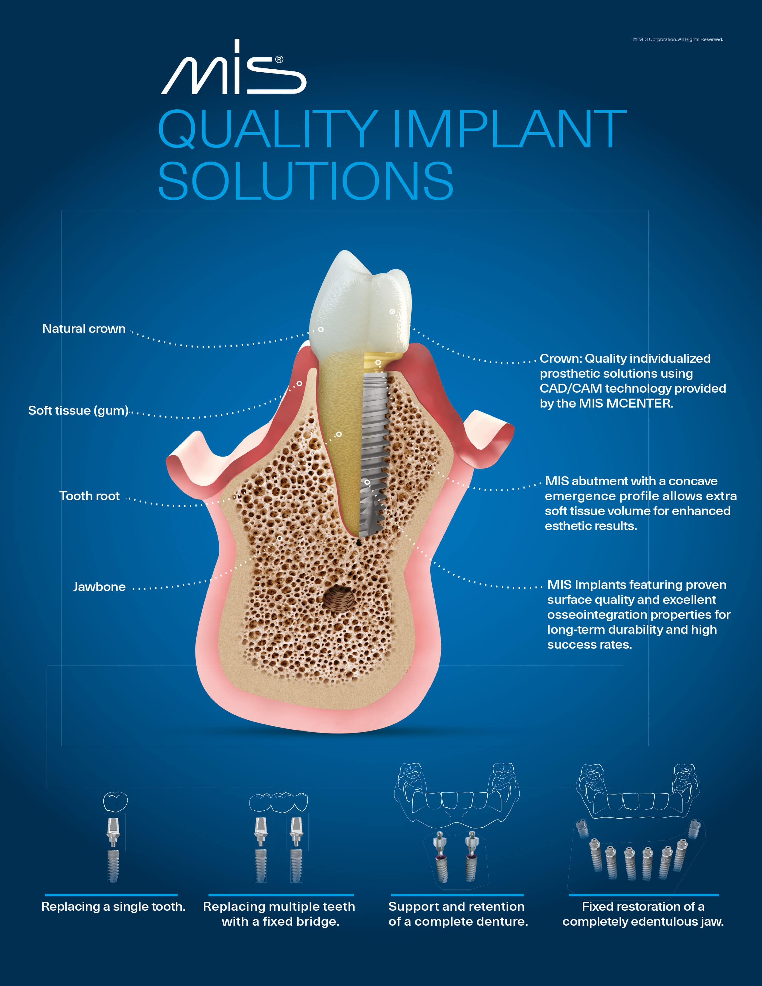 Implant Poster